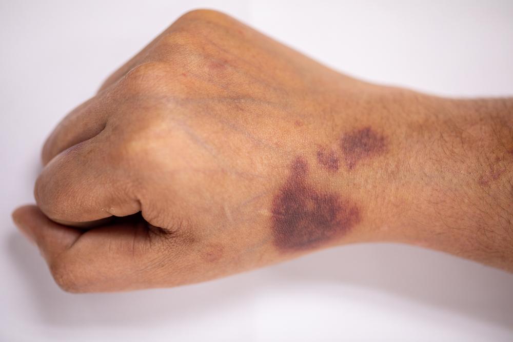 hemofília vérzékenység