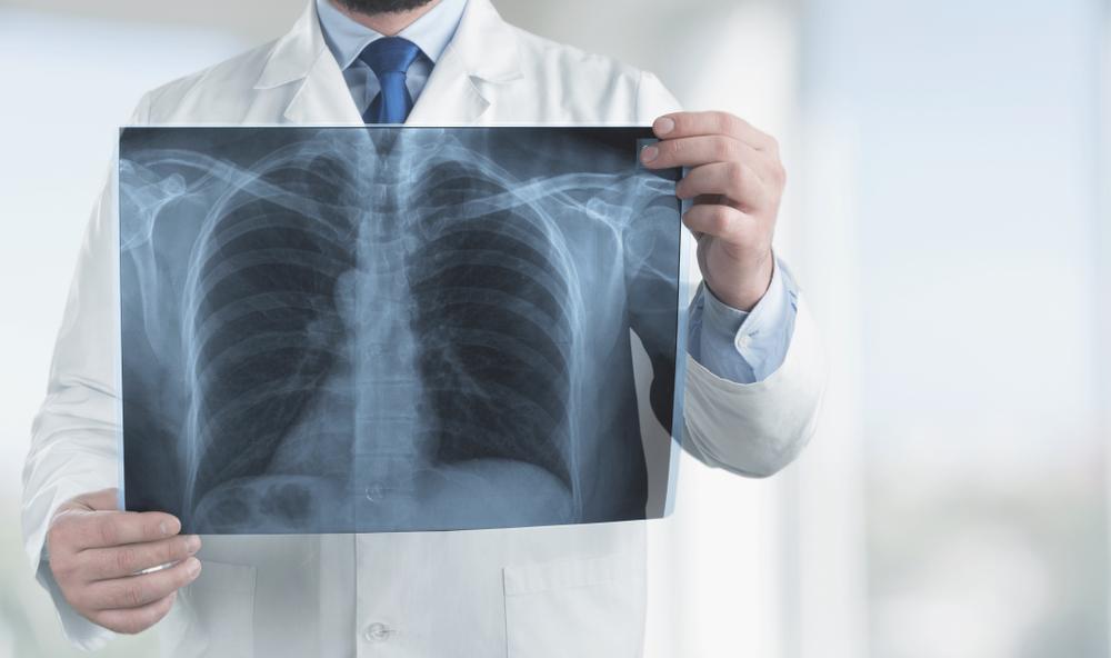 COPD dohányzás
